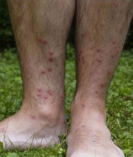 Cercarial_dermatitis_lower_legs_Swimmers